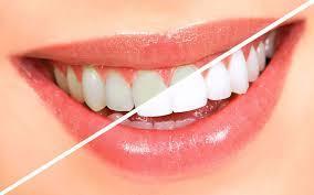 خونریزی لثه نشانه چیست؟ / نقش بزاق دهان در جرم سازی دندان